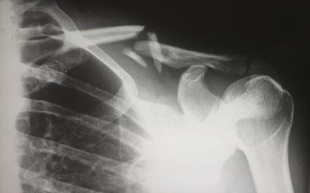 ShoulderFracture